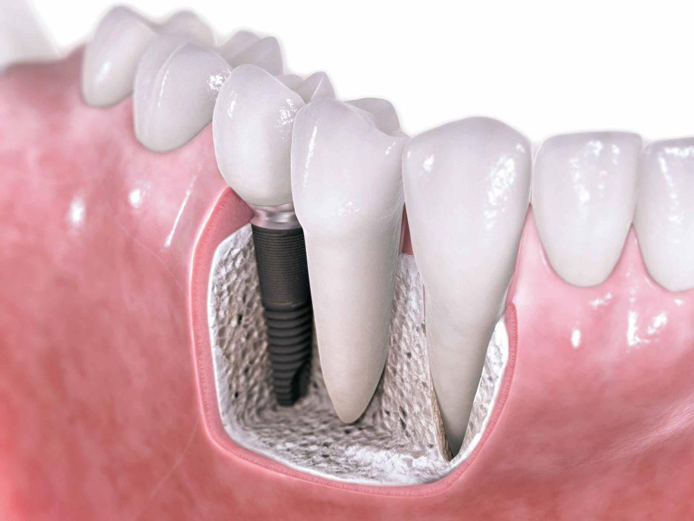 Implanty czy proteza zębowa?